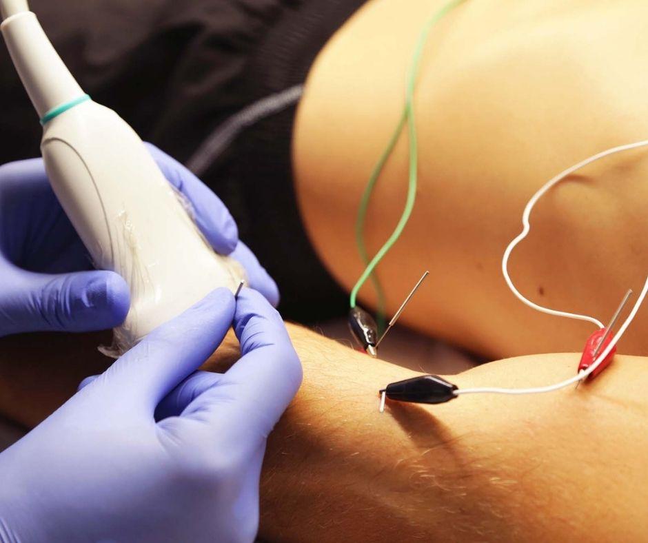 neuromodulación percutánea (EPTE) - Clínica David Marcos - fisioterapia
